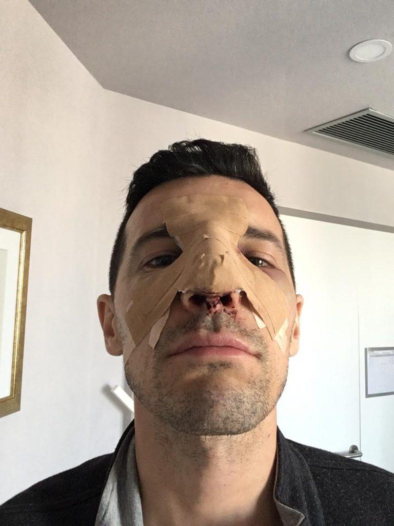 A doua zi după operație